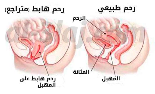 هبوط الرحم مركز ذرية الطبي